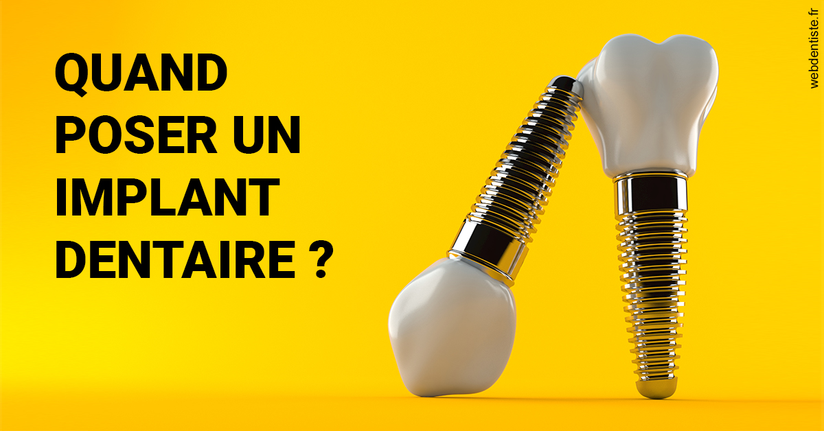 https://dr-caroline-maignan.chirurgiens-dentistes.fr/Les implants 2